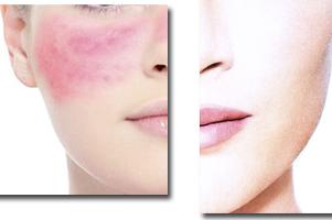 Rosácea descubre sus causas y los tratamientos y rutinas de belleza más adecuados en farmaciapenadesalcoyblog