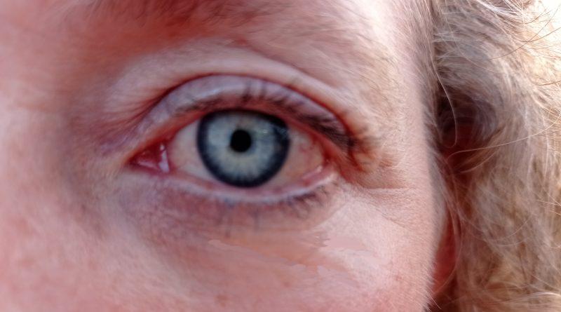 ¿Por qué tengo el ojo rojo?